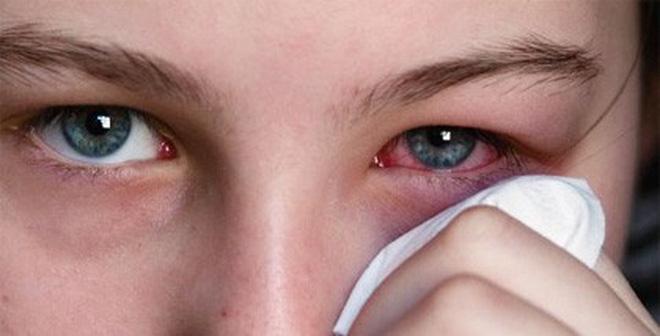 Đau mắt đỏ dùng thuốc gì ?