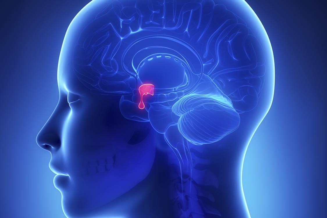 Bệnh suy tuyến yên điều trị như thế nào?