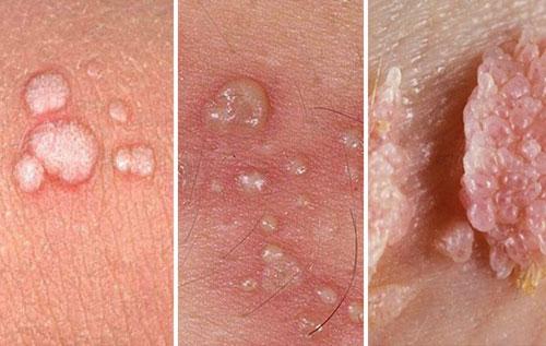 Bệnh sùi mào gà ở bộ phận sinh dục nữ