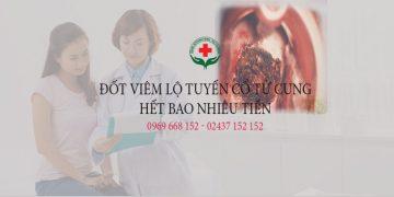 Đốt viêm lộ tuyến cổ tử cung bao nhiêu tiền [Cập nhật giá chung bệnh viện]